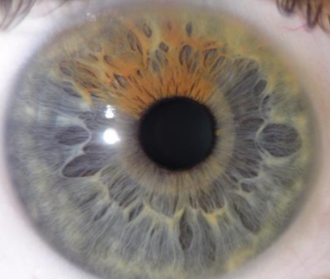 Screen Shot 2019 03 23 at 5.39.11 PM - Why Iridology?